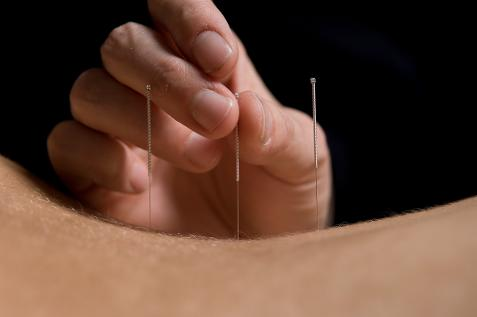 NATURAL HARMONY ACUPUNTURE WANSTEAD